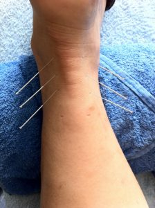 houston nutrition acupuncture